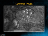 H3 - Flood growth pods concept.png